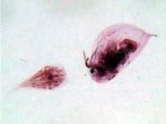 Daphnia and Cyclops, whole mount (prepared microscope slide)