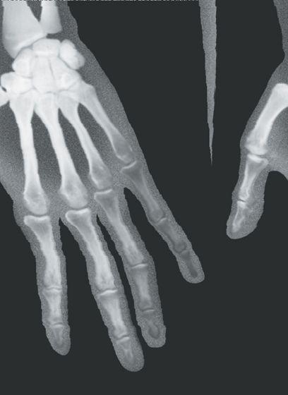Human X-Rays