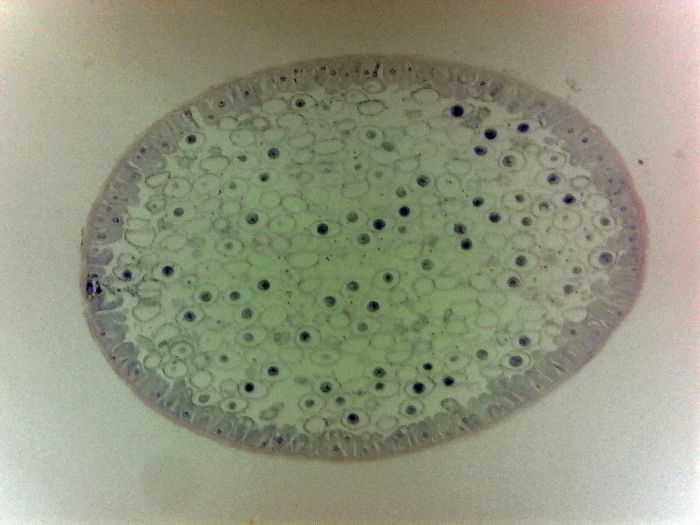 Ascaris (roundworm) egg and cross-section showing mitosis (prepared microscope slide)